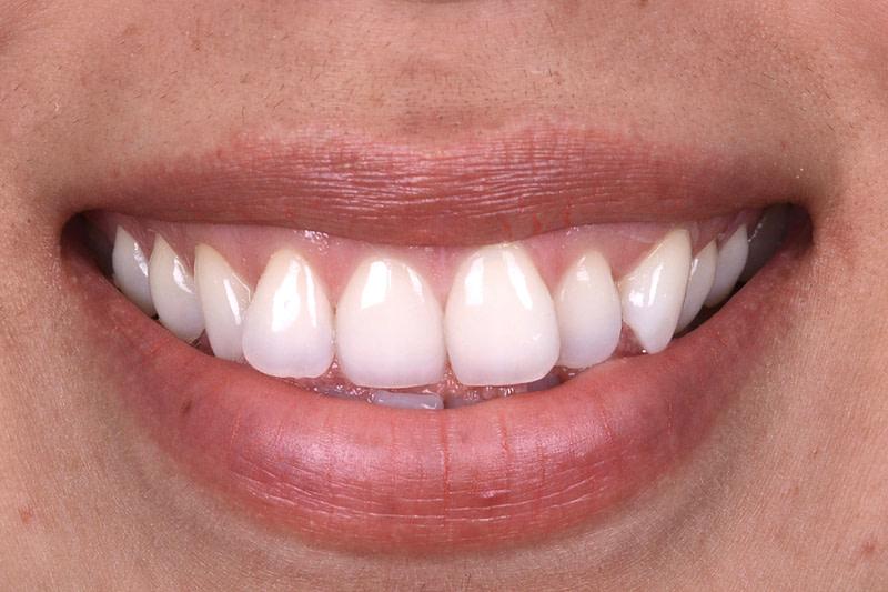 tandarts voorburg